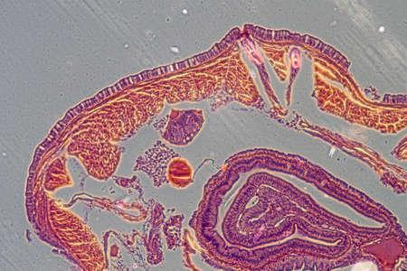 celula animal: microscopía de la ciencia micrografía lombriz de tierra transversal Foto de archivo