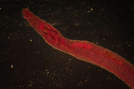 medical microscopy animal parasiteras schistosome blood flukes