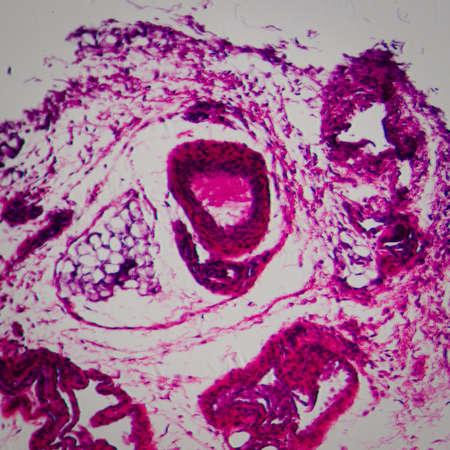 la ciencia médica anthropotomy fisiología microscópica sección de fondo del tejido ganglios linfáticos Foto de archivo