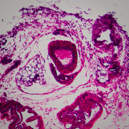 science medical anthropotomy physiology microscopic section of lymph gland tissue background photo