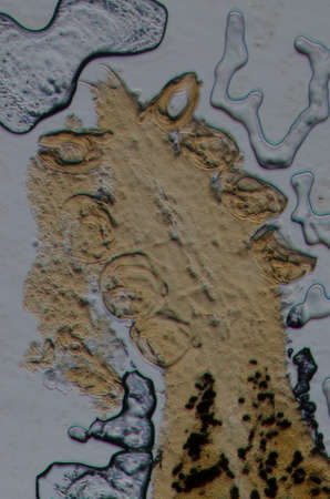 science aquaculture fish parasite  hook clip worm micrograph photo