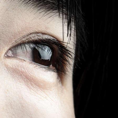 occhi tristi: occhio con striscia sangue di donna asiatica