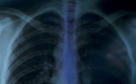 x-ray of chest of human photo