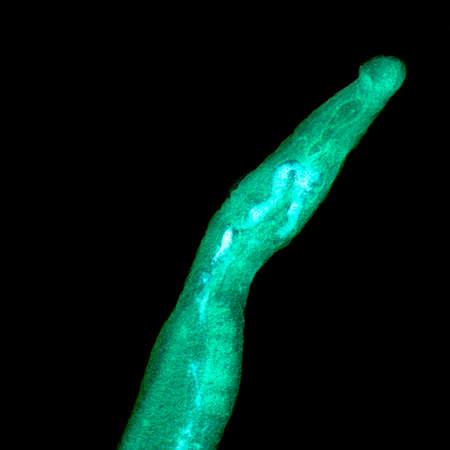 flukes: medical microscopy animal parasiteras schistosome blood flukes on black background