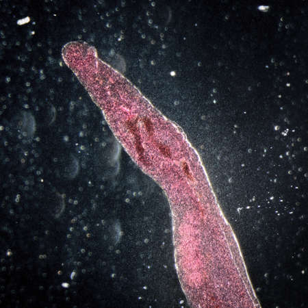conjunction: medical microscopy animal parasiteras schistosome blood flukes