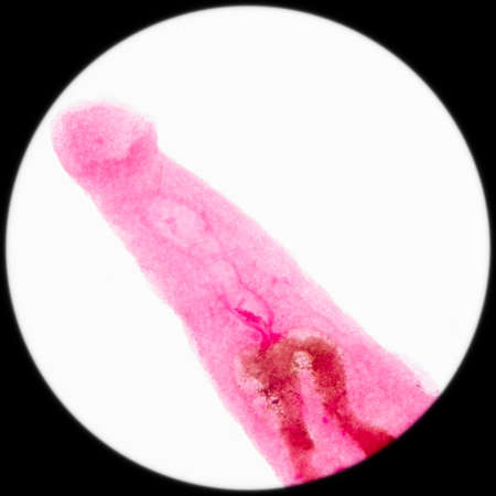 microscopy: medical microscopy animal parasiteras schistosome blood flukes