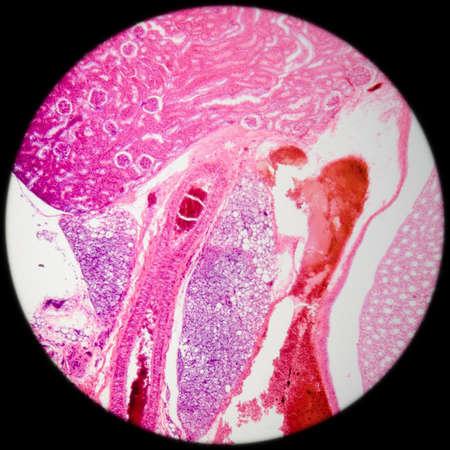 la ciencia médica anthropotomy fisiología microscópica sección de trasfondo humano tejido renal Foto de archivo