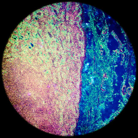 lymph: science medical anthropotomy physiology microscopic section of lymph gland tissue background