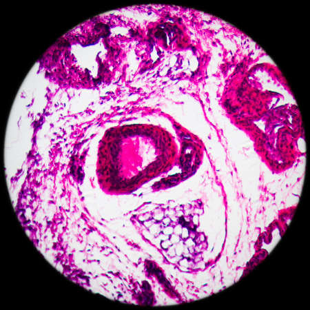 science medical anthropotomy physiology microscopic section of lymph gland tissue background Stock Photo - 16195374