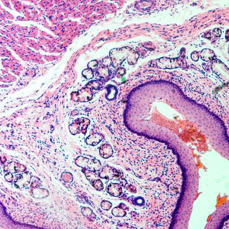 micrografía de célula ciencia médica tejido epitelio escamoso estratificado Foto de archivo