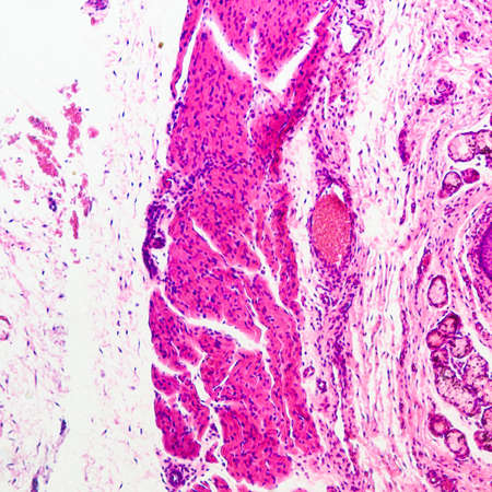 stratified: micrograph of medical science stratified squamous epithelium tissue cell