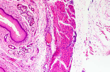 microscope: micrograph of medical science stratified squamous epithelium tissue cell
