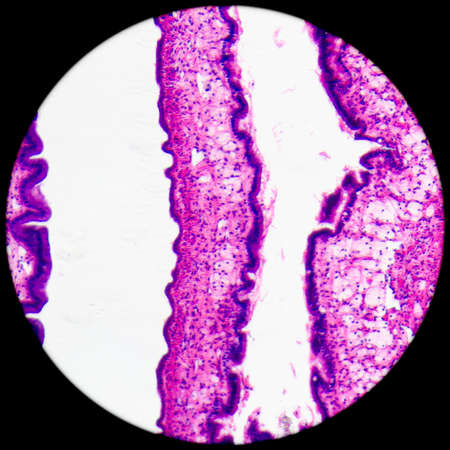 microscopic: micrograph of medical science cilliated epithelium tissue cell