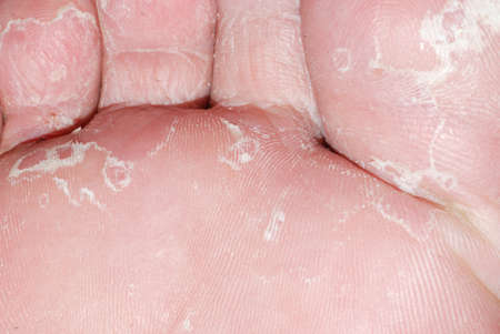 dry skin texture detail of human foot photo