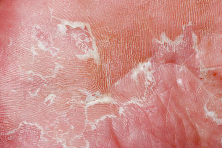 dry skin texture detail of human foot