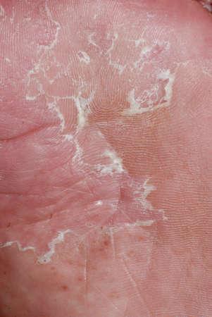 human skin texture: dry skin texture detail of human foot