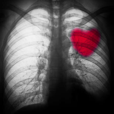 x-ray of chest of human