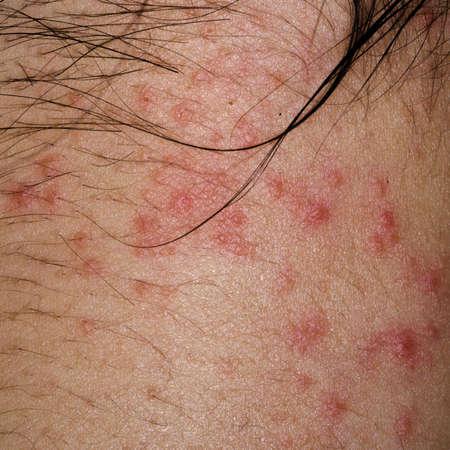 rash: enfermo erupci�n eczema dermatitis al�rgica de la piel del paciente