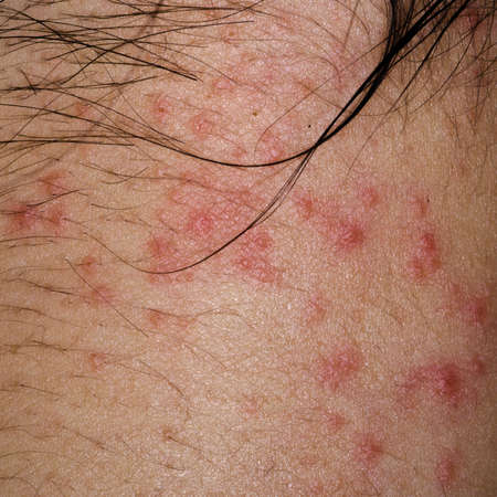 ill allergic rash dermatitis eczema skin of patient