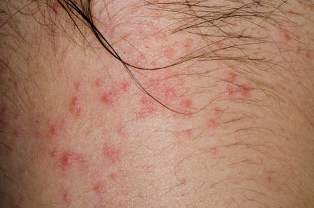 ill allergic rash dermatitis eczema skin of patient photo