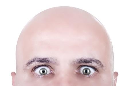 face à la tête chauve regardant,