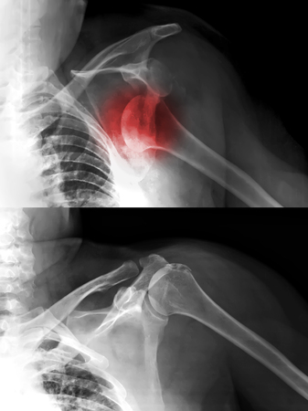 dislocation: x-rays image of the painful or injury shoulder joint ,shoulder dislocation  Stock Photo