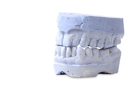 prothetic: teeth mold  isolated on white background