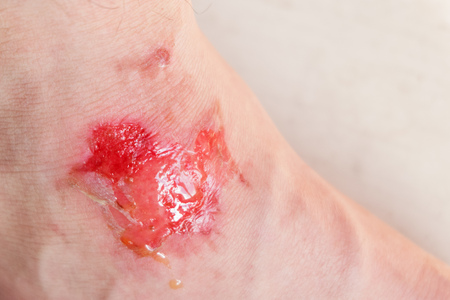 Skin burn. Wound on foot from burn Imagens - 124161147