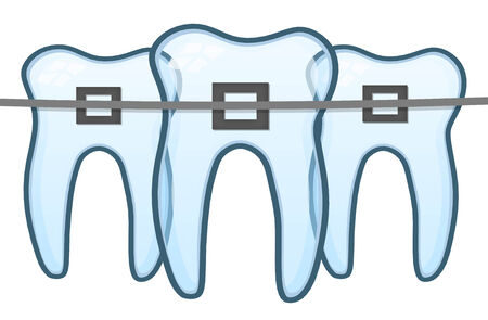 root canal: the brace on tooth