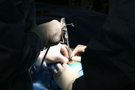 endoscope in Brain