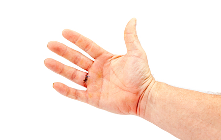 sewn: after the removal of a cyst in the finger of a hand, this sewn with three wires