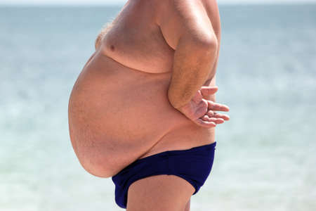 Uomo con la pancia Maschio obeso all'aperto. Grave problema di salute. Alto rischio di ernie. Archivio Fotografico - 67080619