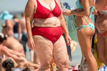 sedentary: Obese woman in swimsuit. People on the beach. Sedentary lifestyle and poor nutrition. Risk of heart illnesses. Stock Photo