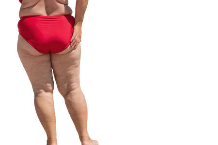 Legs of obese lady. Isolated overweight woman. Aftermath of poor nutrition. Problem with metabolism. Stock Photo