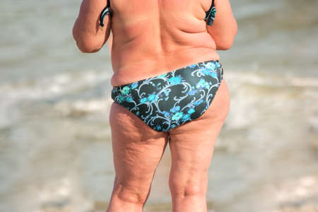 Back view of overweight woman. Obese lady standing outdoor. Quit your lazy lifestyle now. High risk of heart diseases.