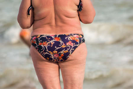 Back view of obese lady. Overweight woman outdoor. Increased risk of heart diseases. Excessive weight harms health. Stock Photo
