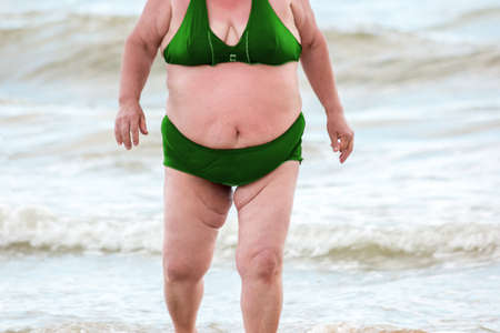 determines: Obese woman on the beach. Fat lady wearing swimsuit. Lifestyle determines appearance. Risk of cancers. Stock Photo