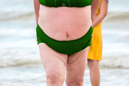 excessive: Stomach of a fat woman. Overweight lady in a swimsuit. Excessive weight is dangerous problem. High risk of cancers.