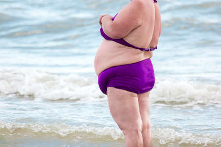 Obese woman at the sea. Fat person outdoors. Return to health. High risk of diabetes development. Stock Photo