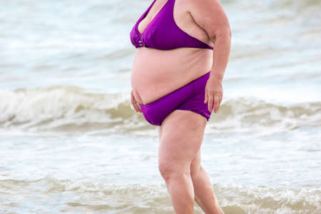 hernia: Fat lady on the beach. Obese woman wearing swimsuit. Change lifestyle to become healthier. Increased risk of hernia development.