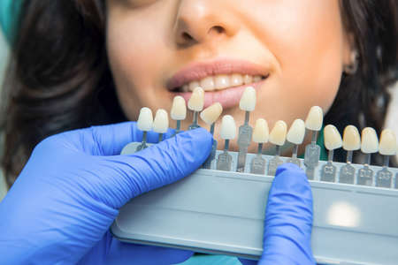 Tooth Color Chart Hands Of Dentist In Gloves Teeth Whitening