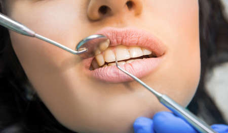 Teeth, probe and mouth mirror. Examination at dentist, close up. Perfection starts from health.