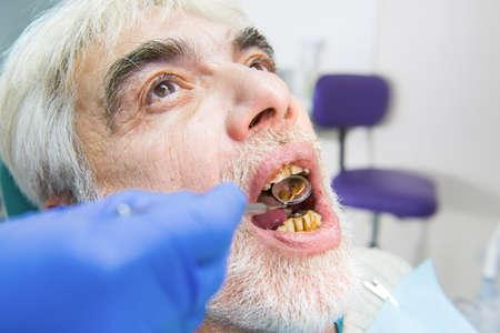 歯の悪い老人。手は、デンタル ミラーを保持しています。