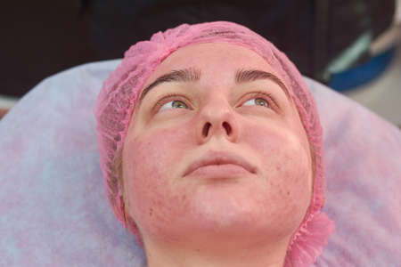 Face of young woman, acne. Beauty clinic patient close up. Skin infections guidelines. Stock Photo