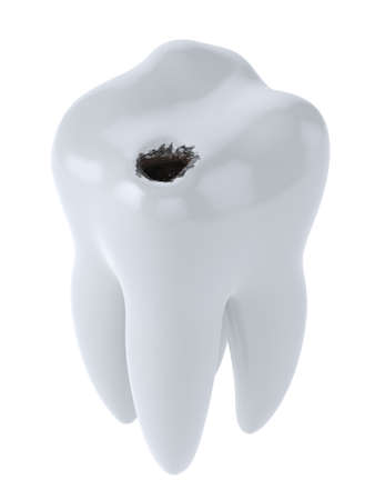 cavity: 3d render of white tooth with black hole caries isolated on white background