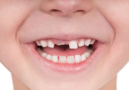 first teeth: Happy little girl or boy toothless smile close-up Stock Photo