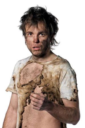 hombre sucio: Retrato de hombre quemado con f�sforo blanco sobre fondo