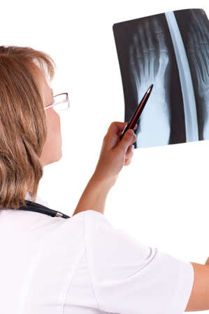 Medical doctor analysing x-ray photography isolated on white background photo