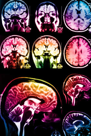 colorful x-ray scan of brain Stock Photo - 12689422
