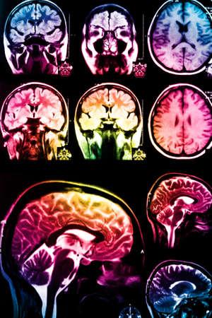 enfermedades mentales: colorido de rayos X de exploraci�n de cerebro Foto de archivo